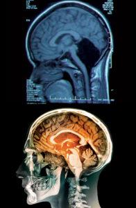 Neuroplasticity in brain missing the cerebellum